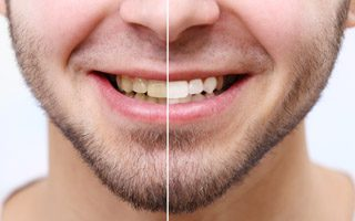Teeth Whitening - Wollaston Dental Practice