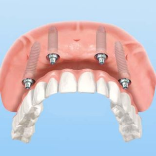 Small Removable Upper Arch Implants