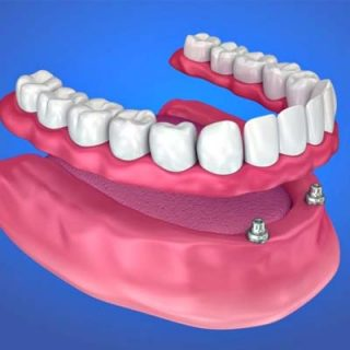 Lower removable Denture 2 Implants