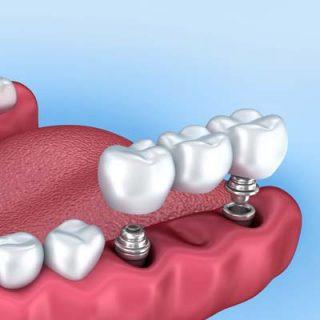 Three Tooth Implant Bridge